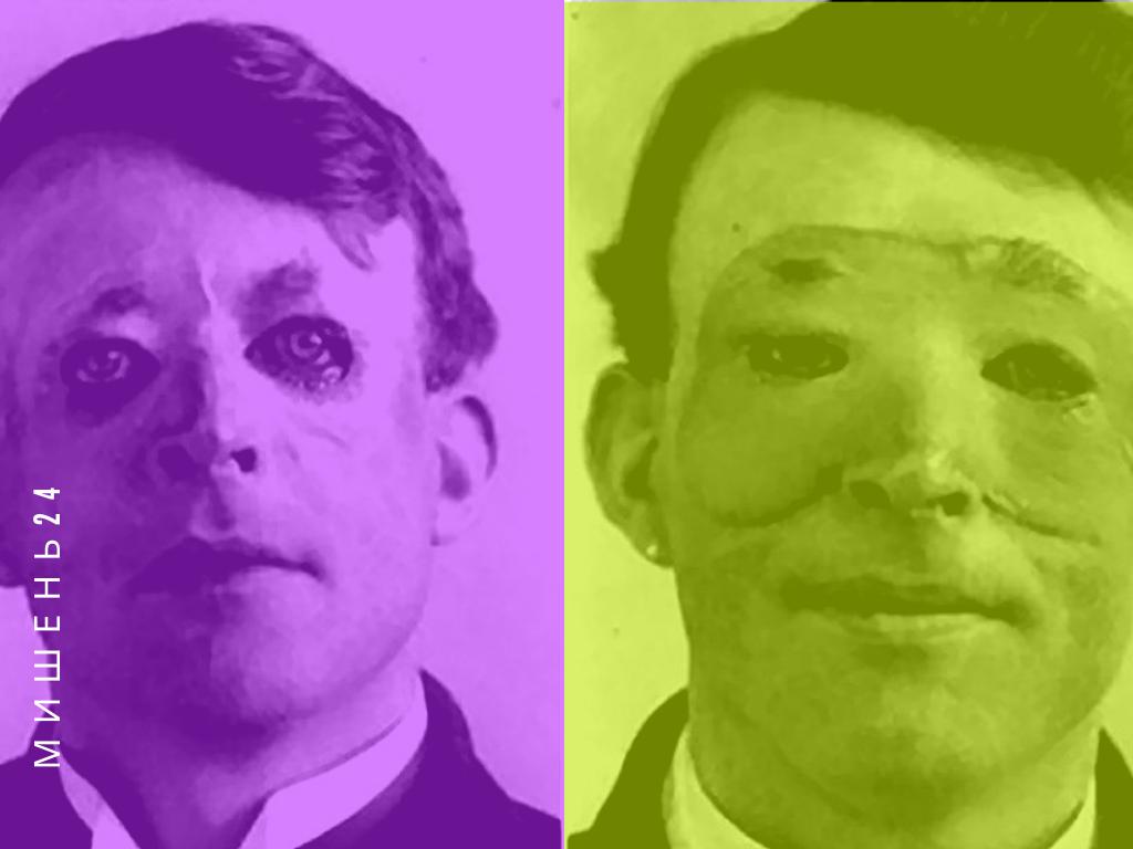 Вальтер Ио, до и после операции по пересадке кожи, 1917 год
